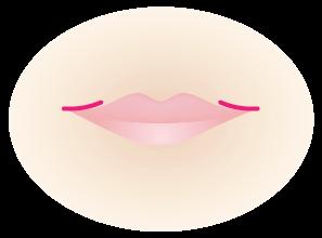 口角挙上 切開手術